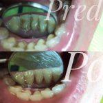 Dentálna hygiena Hlohovec
